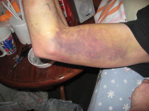 Right Arm Bruise